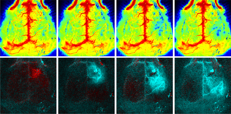 Cortical spreading depolarization (CSD) - imaged using PeriCam PSI