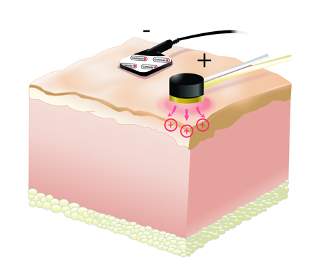 Iontophoresis illustration