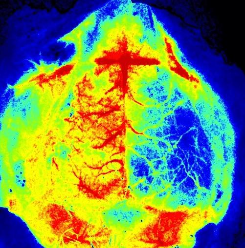 Mouse brain - Stroke Model MCAO