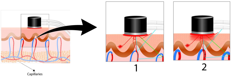 Heat controlled laser doppler - illustration