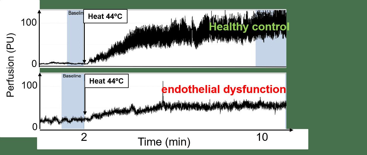 Endothelial dysfunction illustration