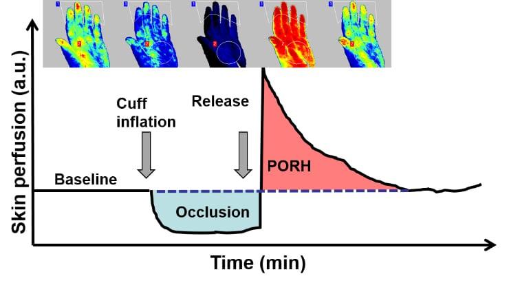 Post-occlusive reactive hyperemia (PORH)