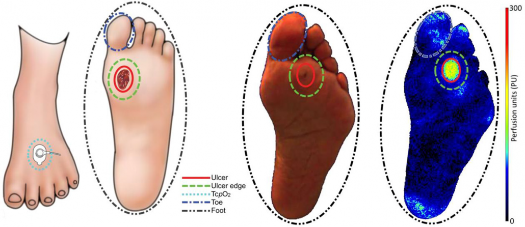 Diabetic foot leading to ulceration