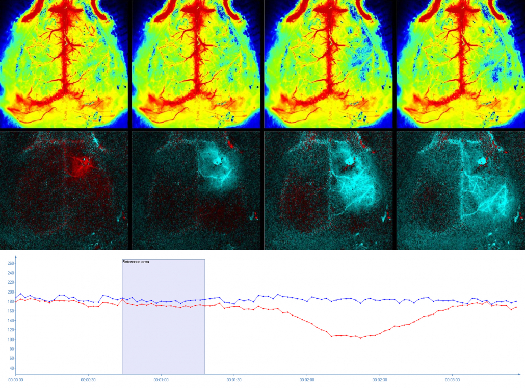 Mouse brain monitoring using PSI HR
