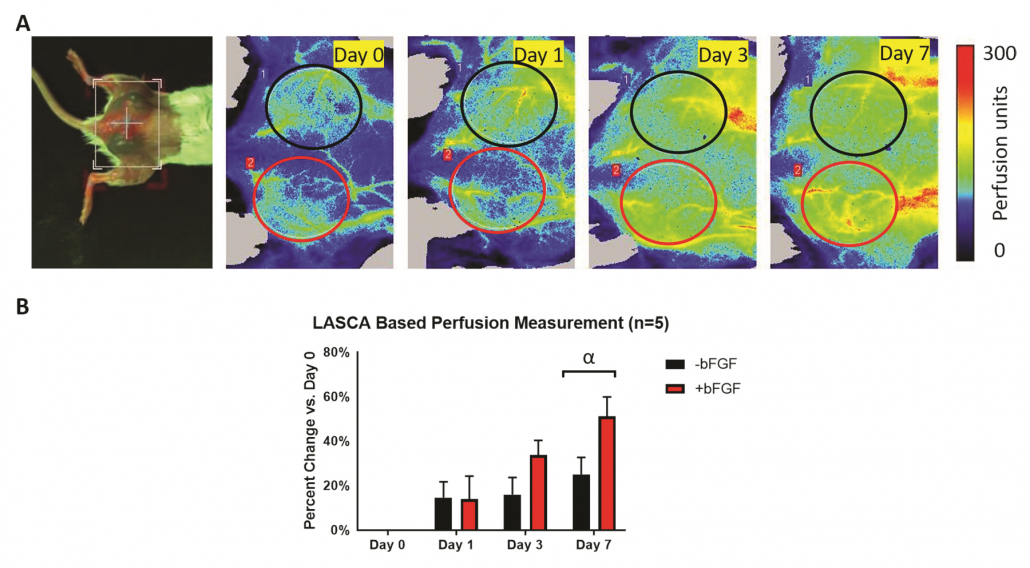 PSI for Neovascularization/Angiogenesis - LASCA based perfusion measurement